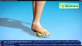 ورزش جهت درمان درد پاشنه وخار پاشنه ودرد کف پا دکتردقاق زاده