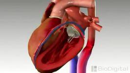سکته قلبی یا نارسایی قلبی