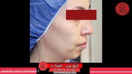 تزریق چربی  فیلم تزریق چربی  کلینیک پوست مو رز  شماره23