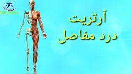 درمان آرتریت یا التهاب مفاصل تغذیه راهکارها برای درمان درد مفاصل