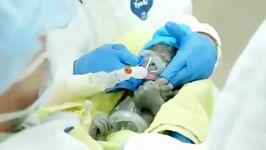 نوزاد گوریل تازه متولد شده