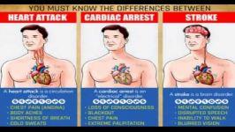 تفاوت بین یک حمله قلبی، ایست قلبی سکته مغری