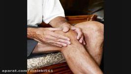 درمان آرتروز زانو سلول درمانی یا پی آر پیPRP