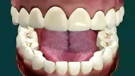 پوسیدگی بوی بد دهان توسط باکتری های داخل دهان